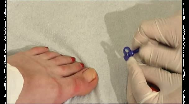 ToeFix Instructional - Ri...